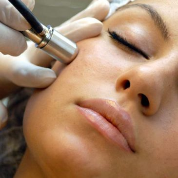 Microdermabrasion: treatments